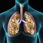 Popcorn Lung graphics