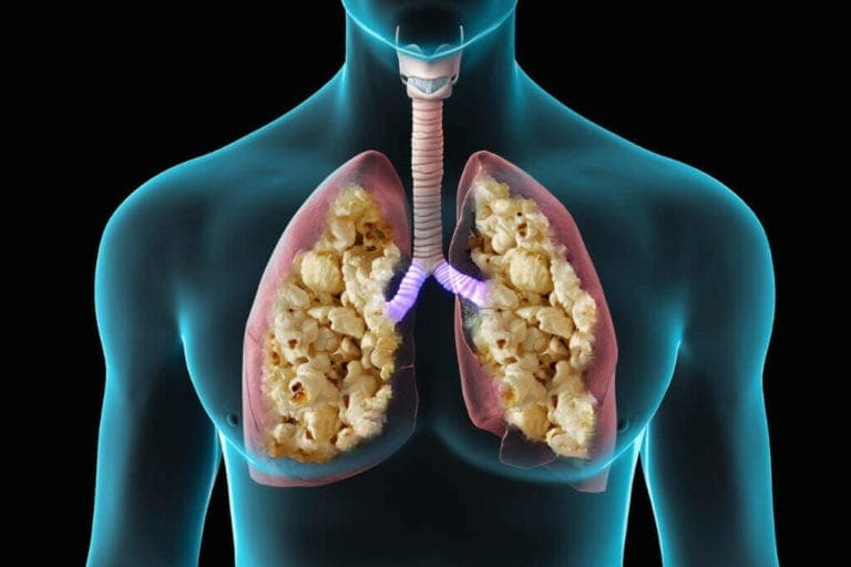 Popcorn Lung graphics