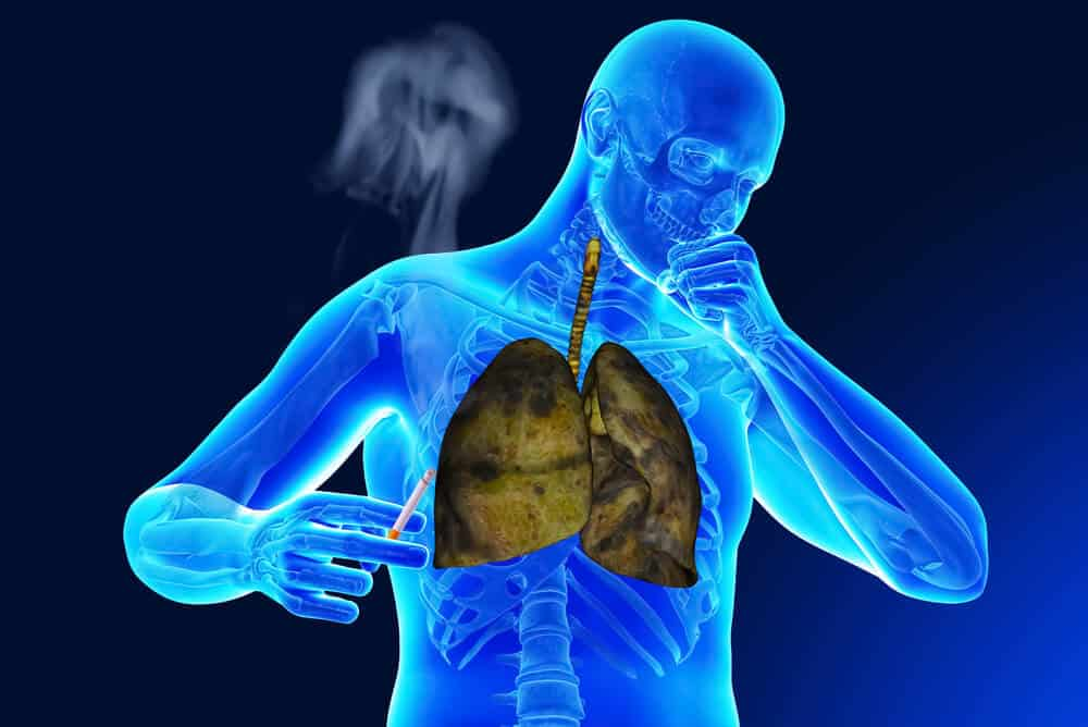 smokers lungs graphics
